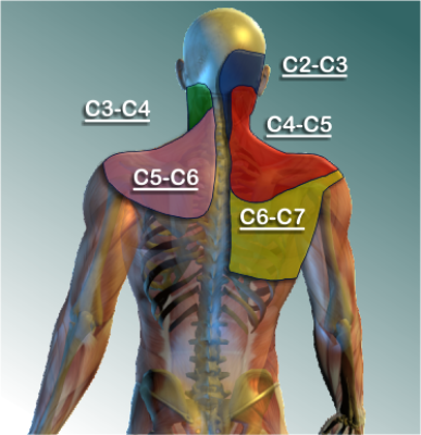 Neck Pain and Cervical Facet Syndrome | Coon Rapids ...